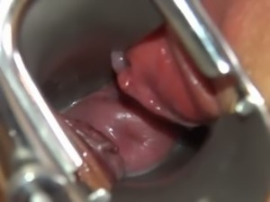 Camera deeply in her gaped vagina vagina